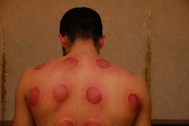The visible marks after cupping, By: Renato Ganoza